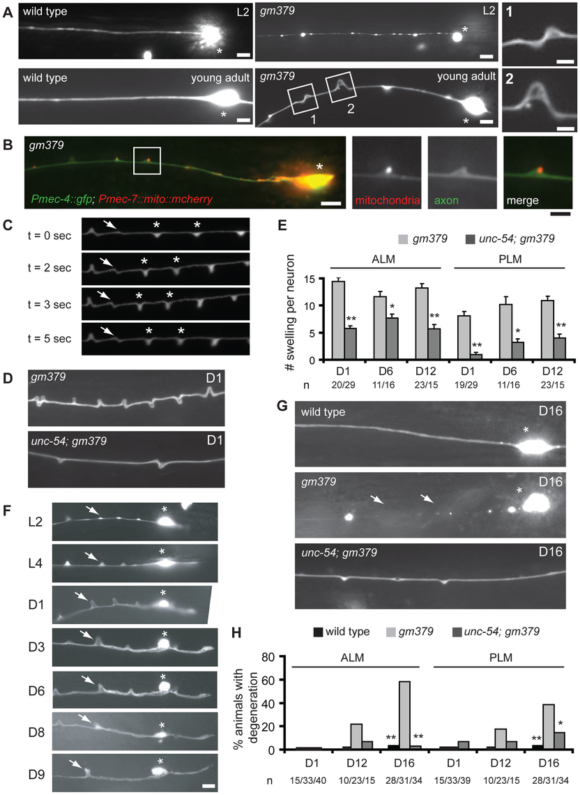 Axon pathology of the touch neurons in the <i>gm379</i> mutant.