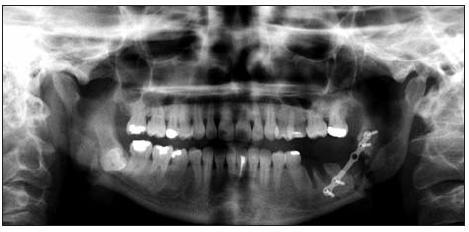 Ortopantomogram – stav po vybavení zubů 36 a 38, repozici a osteosyntéze iatrogenní zlomeniny těla dolní čelisti