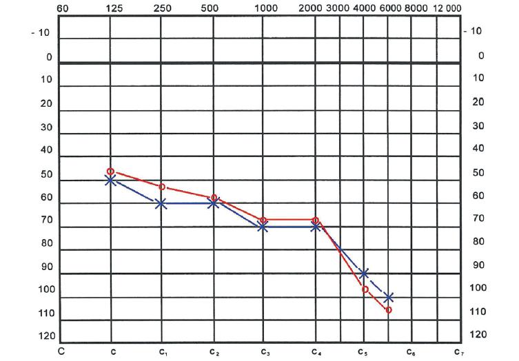 Audiogram po 8 měsících. Sluchová vada progredovala i přes dlouhodobou udržovací léčbu systémovými kortikoidy.