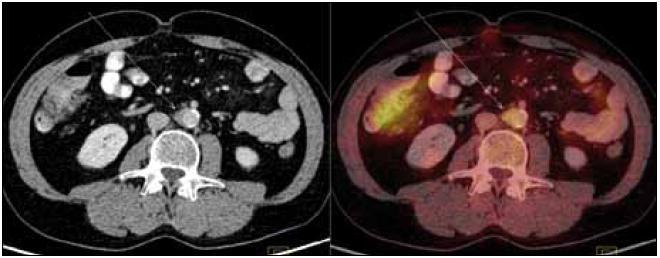 PET-CT zobrazení břicha. Zneostření zevních kontur břišní aorty a nepravidelné zesílení stěny místy až na 9 mm v průměru s lehce zvýšeným metabolizmem glukózy (označeno šipkami). Lehce vyšší aktivita ve vzestupném tračníku je variantou fyziologického zobrazení.