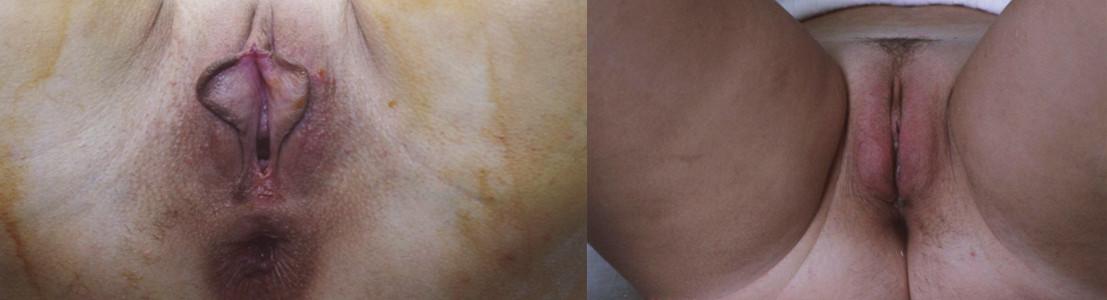 Stav před a po redukci malých stydkých pysků a zvětšení velkých stydkých pysků (foto z archivu J. Války).