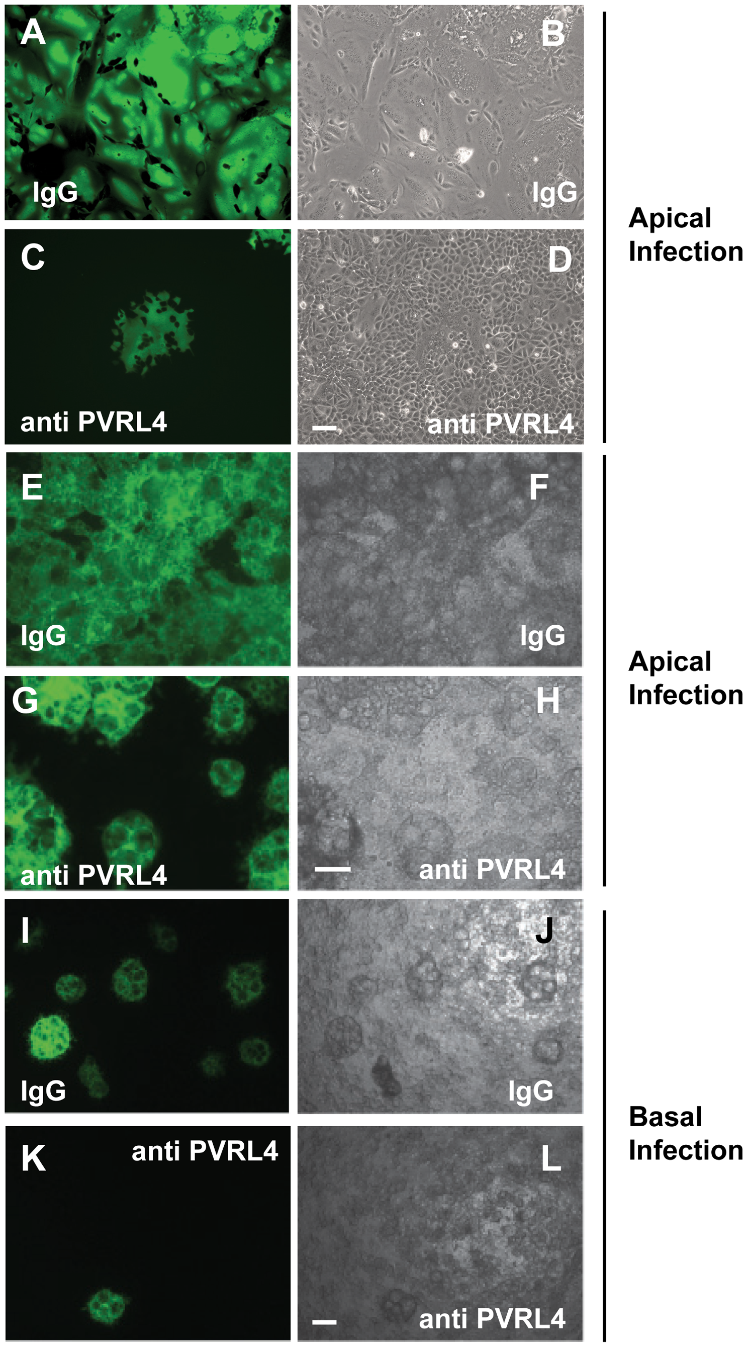 Antibodies specific for human PVRL4 inhibit wtMV infection in MCF7 cells.