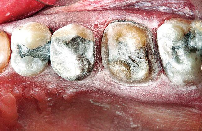 """Zuby a měkké tkáně jsou lehce posypány práškem oxidu titaničitého pro vytvoření reflexního povrchu; prášek poskytuje kontrastní body pro skenování a zvýší rychlost zachycování (převzato z: <a href=""""http://www.dentalaegis.com/id/2009/10/lava-cos-digital-workflow-blends-the-lines-between-laboratory-based-and-dental-office-based-cad-cam-systems-to-digitally-record-tooth-preparations"""">http://www.dentalaegis.com/id/2009/10/lava-cos-digital-workflow-blends-the-lines-between-laboratory-based-and-dental-office-based-cad-cam-systems-to-digitally-record-tooth-preparations</a>)"""