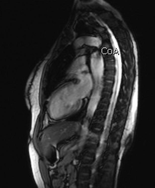 MRI hrudní aorty – koarktace aorty nově diagnostikovaná u 29leté pacientky před IVF (archiv autorů). Fig. 6. MRI of thoracic aorta – coarctation of aorta diagnosed in a 29-year female patient before IVF (authors' archive).