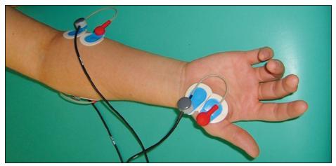 Umístění elektrod: m. opponens pollicis, m. flexor carpi ulnaris.