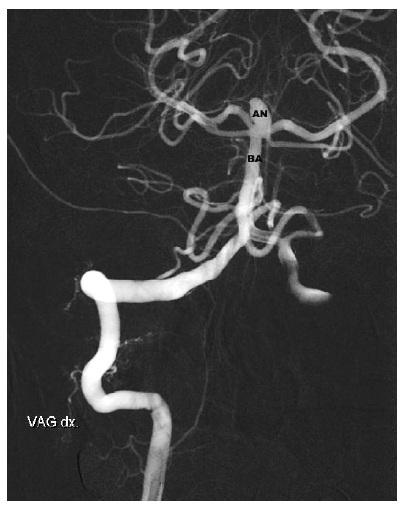 Aneuryzma v terminální části bazilární tepny. AN – Aneuryzm, BA – bazilární tepna Fig. 5: Basilar tip aneurysma – AN – aneurysm, BA – basilar artery