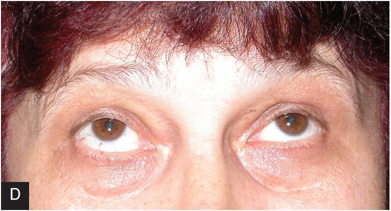 Pacientka s výraznou restrikcí dolního přímého svalu vpravo před operací při pohledu vpřed (a) a vzhůru (b). Po retropozici dolního přímého svalu vpravo je postavení paralelní (c), motilita zlepšena i při pohledu nahoru (d)