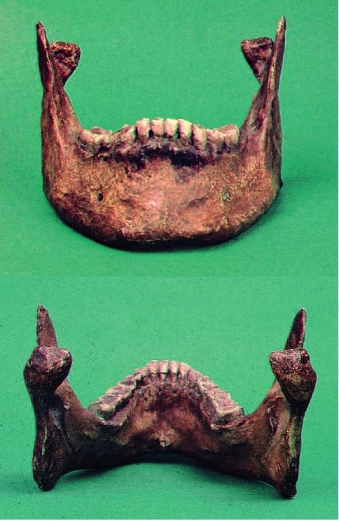 Obr. 5a, b Dolní čelist Karla IV. se sklopenými kloubními výběžky (kopie).