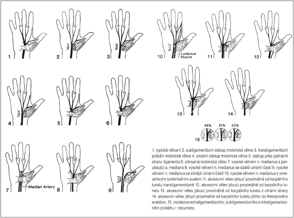 Anatomické varianty n. medianus v zápästí. Prevzaté s poďakovaním z Smrčka M, Vybíhal V, Němec M. Syndrom karpálního tunelu. Neurol Prax 2007; 4: 240– 243.
