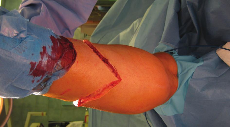 Dorzální část řezu Fig. 2: Dorsal part of the incision