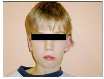 U pacienta již zjevná asymetrie obličeje
