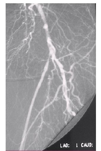 DSA obraz zlyhávajúceho femoropopliteálneho distálneho bypasu s autológnou reverznou vena saphena magna na ľavej dolnej končatine rok po implantácii.