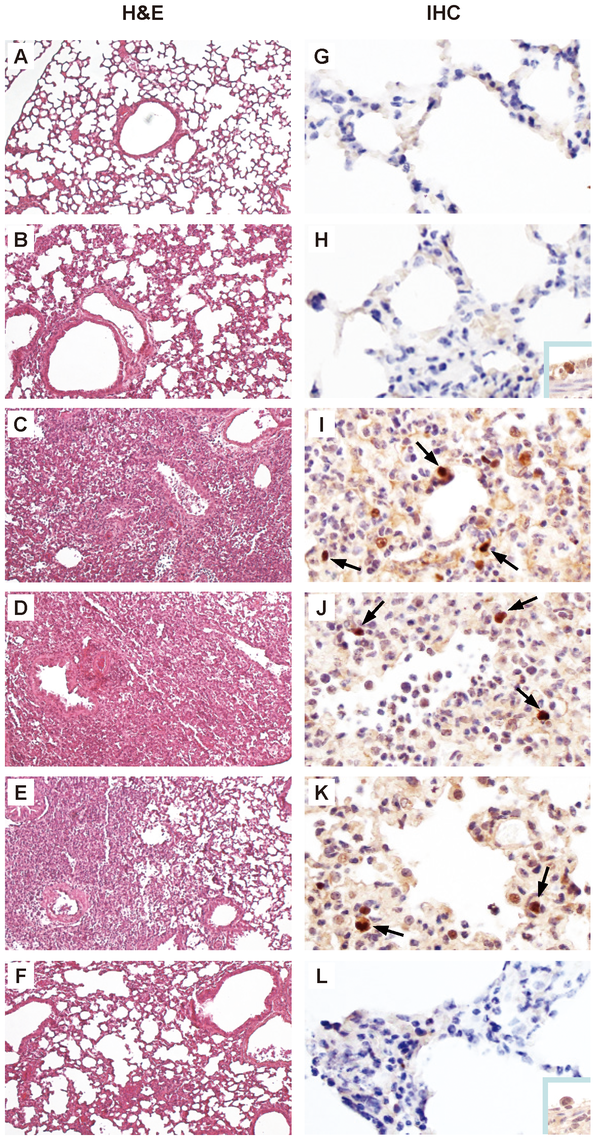 Histopathology and immunohistochemistry in lung tissues of mice infected with rEG/D1 viruses.