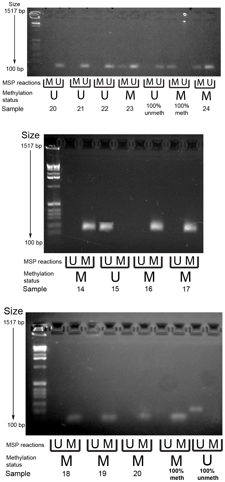 Example gel image of PCDH7 promoter methylation-specific PCR (top gel) and SLIT2 methylation-specific PCR (bottom and middle gels).