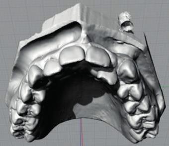 Finální digitální model (s laskavým souhlasem MDDr. Kateřiny Mazurové, Ph.D., převzato z: Mazurová, K.: Digitální ortodontické modely. Atestační práce. Olomouc, 2013)