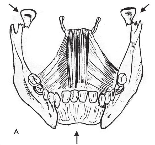Obr. 6b Mechanismus odlomení kloubních hlavic a brady (kresba autor).