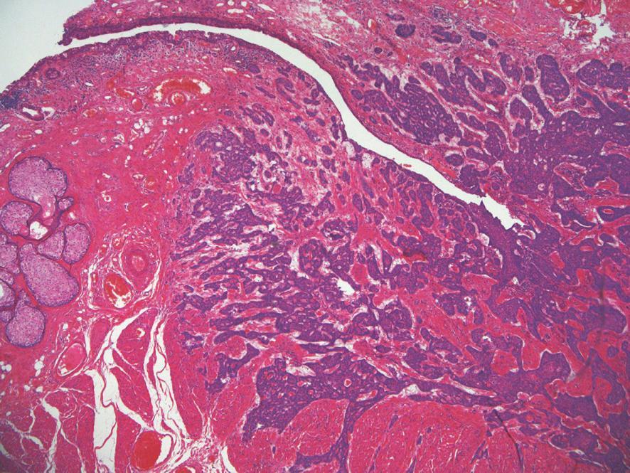 Nodulárny bazalióm mihalnice s hlbokou infiltráciou mäkkých tkanív a očnice (vpravo hore).  HE 100x