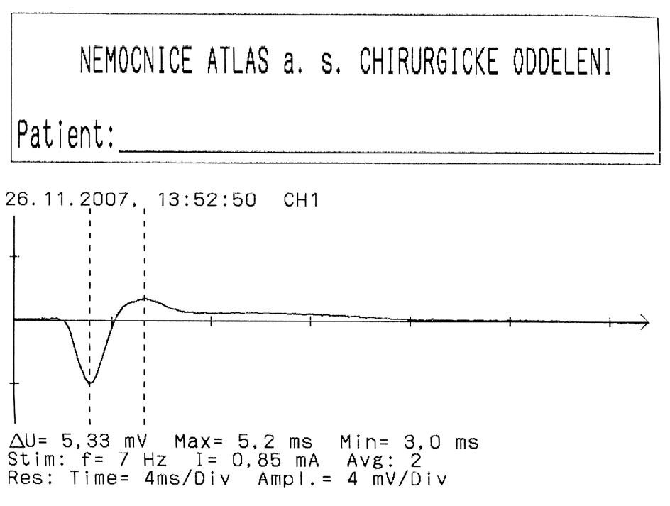 EMG křivka m. vocalis Fig. 7. The vocal muscle EMG curve