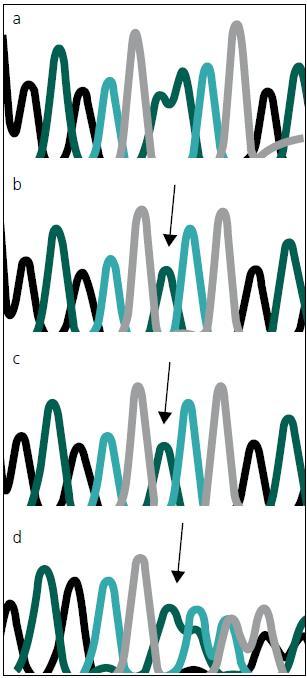 Chromatogram se sekvencí <i>MTM1</i> genu, zobrazující místo mutace c.82delA.