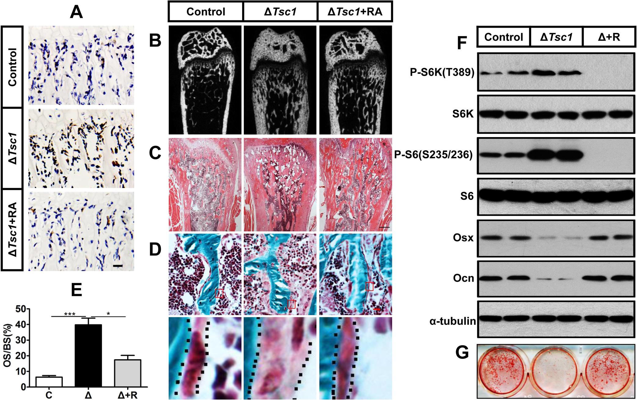 Rapamycin reverses phenotypes in Δ<i>Tsc1</i> mice.