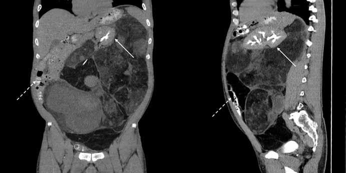 Snímky z CT vyšetření břicha (vlevo – koronární řez, vpravo – sagitální řez).