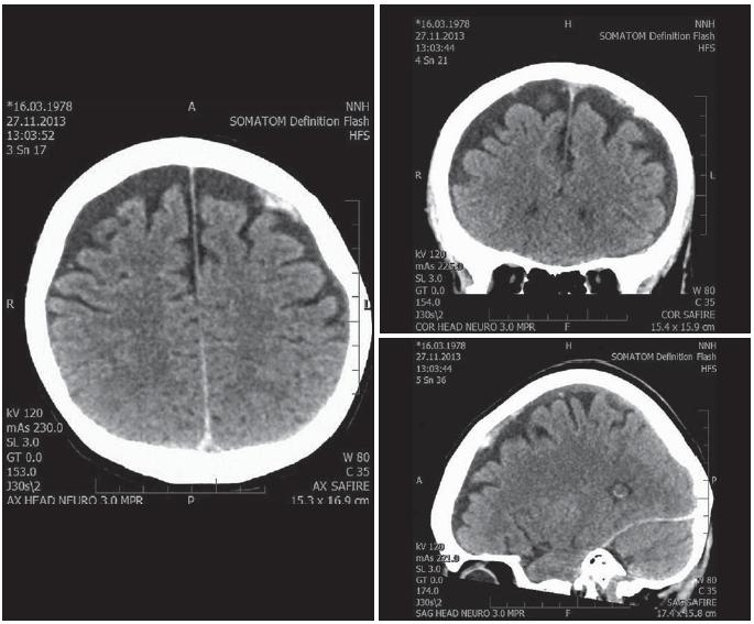 Obr. 3–5. Transverzální, axiální a sagitální CT skeny mozku po resorpci hematomu pořízené za 20 hod od vstupního CT vyšetření.