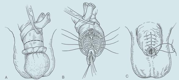 Parciální amputace penisu - klasická technika. A: Naložení turniketu a cirkulární kožní excize 2 cm proximálně od nádorového postižení. B: Gilotinové přerušení kavernózních těles a uzavření jednotlivými matracovými hemostatickými stehy 2-0. Přesahující část uretry je nastřižena, vějířovitě rozevřena a marsupializována ke kožním okrajům. C: uzávěr kožního krytu pahýlu penisu.
