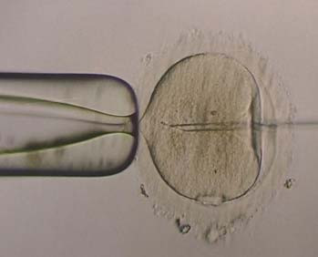 ICSI - spermie na konci pipety.
