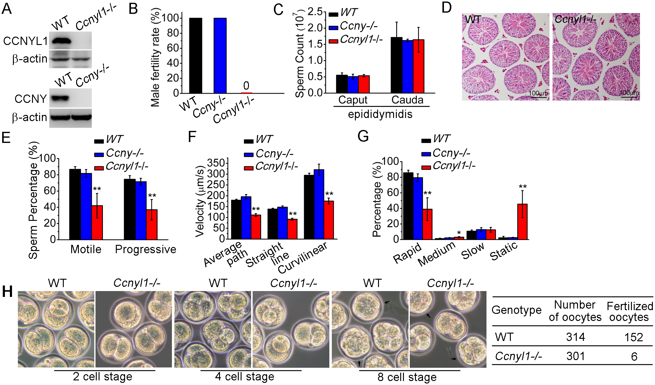 Essential function of CCNYL1 for male fertility and sperm motility.
