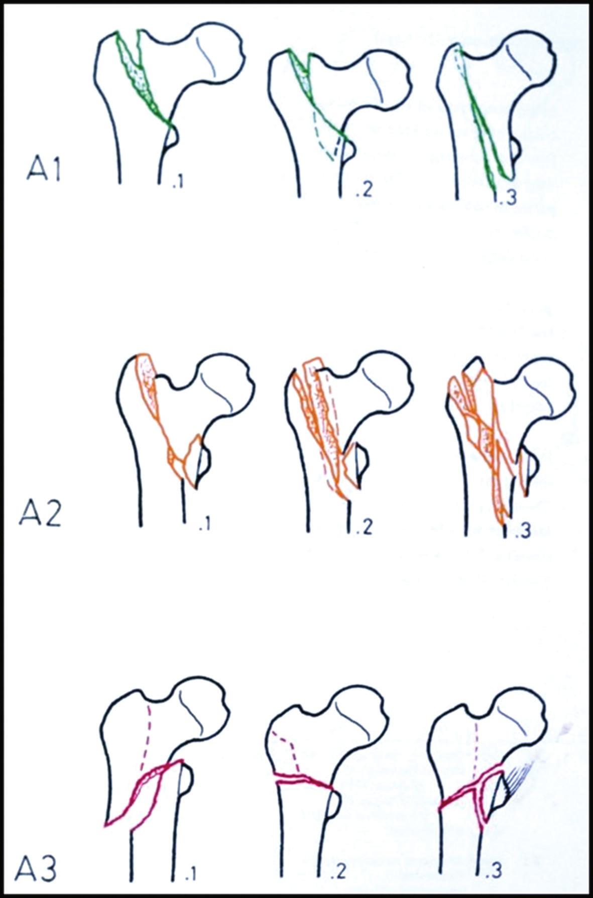 AO klasifikace trochanterických zlomenin A1 – stabilní pertrochanterické zlomeniny; A2 – nestabilní pertrochanterické zlomeniny; A3 – intertrochanterické zlomeniny. Fig. 4: AO classification of trochanteric fractures A1 – stable pertrochanteric fractures; A2 – unstable pertrochanteric fractures; A3 – intertrochanteric fractures.