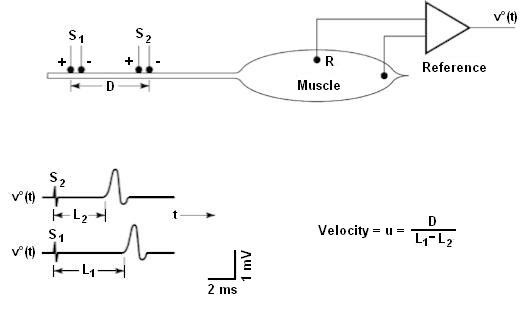 """Fig. 2: Measurement of neural conduction velocity via measurement of latency in the evoked electrical response of a muscle. The nerve was stimulated at two sites with separation distance """"D"""" [3]."""