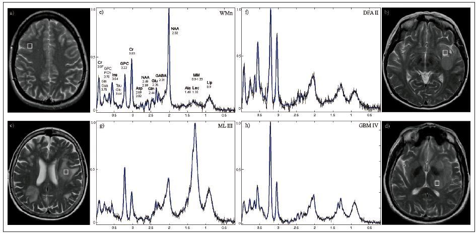 Obr. 1. Experimentální a vypočtená (modrá barva) 1H MR spektra z bílé hmoty centra semiovale zdravé kontroly (e) a z jednotlivých typů lézí (f–h) a odpovídající transverzální MR obrazy (a–d) s vyznačenými spektroskopickými voxely na 3T. Sekvence PRESS-SI (Point Resolved Spectroscopy Imaging), echo čas TE = 30 ms, repetiční čas TR = 1 510 ms, počet akvizic NA = 4 . Umístění MRS voxelu v lézi odpovídá místu provedené stereotaktické biopsie. Intenzity jednotlivých signálů vždy vztaženy k nejvyššímu signálu ve spektru. WMn – normální bílá hmota, DFA II – difuzní fibrilární astrocytom stupně II, ML III – maligní lymfom stupně III, GBM IV –  glioblastom stupně IV. Spektra vypočtena programem LCModel. Jednotlivé signály představují funkční skupiny sloučenin: Ala – alanin, Asp – aspartát, Cr – kreatin, GABA – γ-aminobutyrát, Glc – glukóza, Gln – glutamin, GPC – glycerofosfocholin, Glu – glutamát, Gua – guanidinoacetát, Ins – myo-inositol, Lac – laktát, Lip – lipidy, MM – makromolekuly, NAA – N-acetylaspartát, PCh – fosfocholin, Tau – taurin; u každého metabolitu uvedena hodnota chemického posunu.