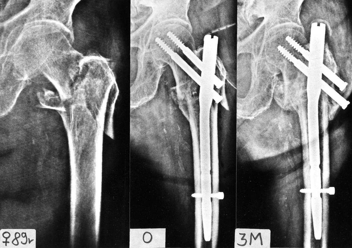Typ intertrochanterické zlomeniny s hrozící nekrózou krčku femuru: a – intertrochanterická zlomenina se sekundární lomnou linií zasahující do velkého trochanteru a oddělující bazi krčku; b – stav bezprostředně po osteosyntéze; c – rtg 3 měsíce po operaci, zlomenina zhojena, patrný výrazný zkrat krčku vzniklý nejen kompresí fragmentů, ale především resorpcí baze krčku femuru.  Fig. 14: Type of intertrochanteric fracture with a risc of development of femoral neck necrosis: a – an intertrochanteric fracture with a secondary fracture line involving the greater trochanter and separating the neck base; b – situation immediately after internal fixation; c – radiograph 3 months postoperatively, fracture has healed with a marked shortening of the femoral neck resulting not only from compression of fragments but primarily from resorption of the femoral neck base.