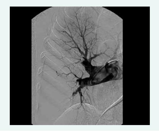 Angiogram zobrazující anatomicky operabilní nález u nemocného s chronickou tromboembolickou plicní hypertenzí