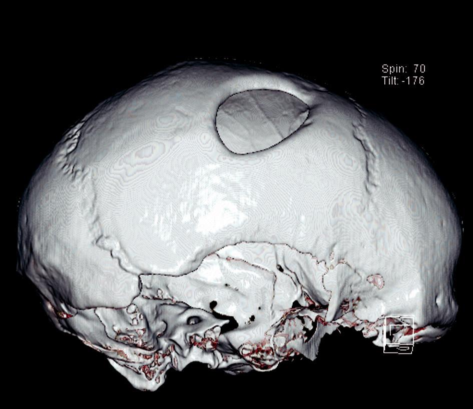 Fig. 4. Skull No. 1 – 3D model