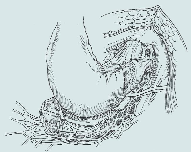 Transsekce prostaty [35].