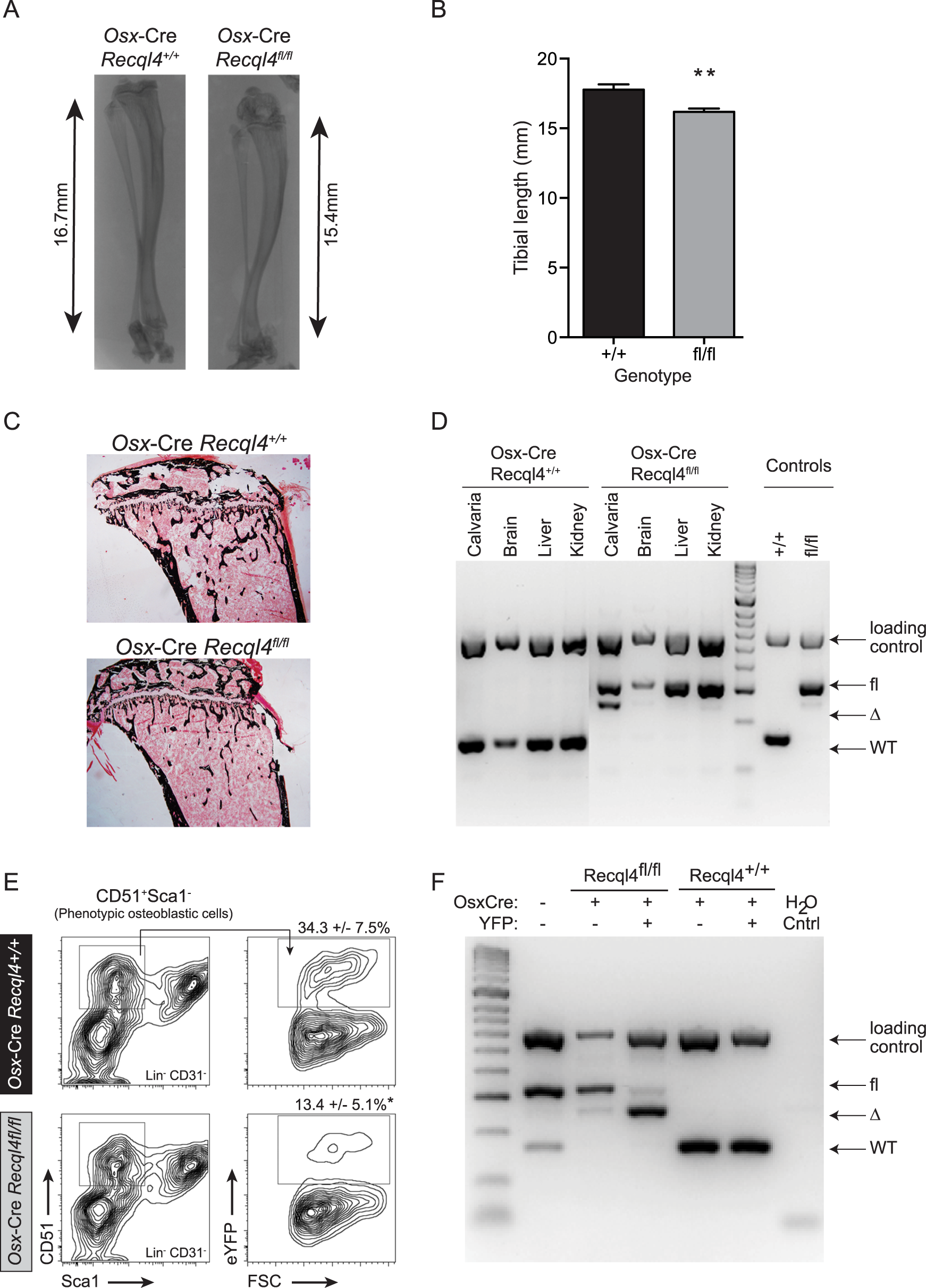 <i>Osx</i>-Cre <i>Recql4</i><sup><i>fl/fl</i></sup> mice have reduced bone length.