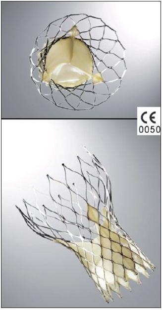 Chlopeň typu CoreValve: v nitinolovém koši je všita vlastní trojcípá biologická chlopeň