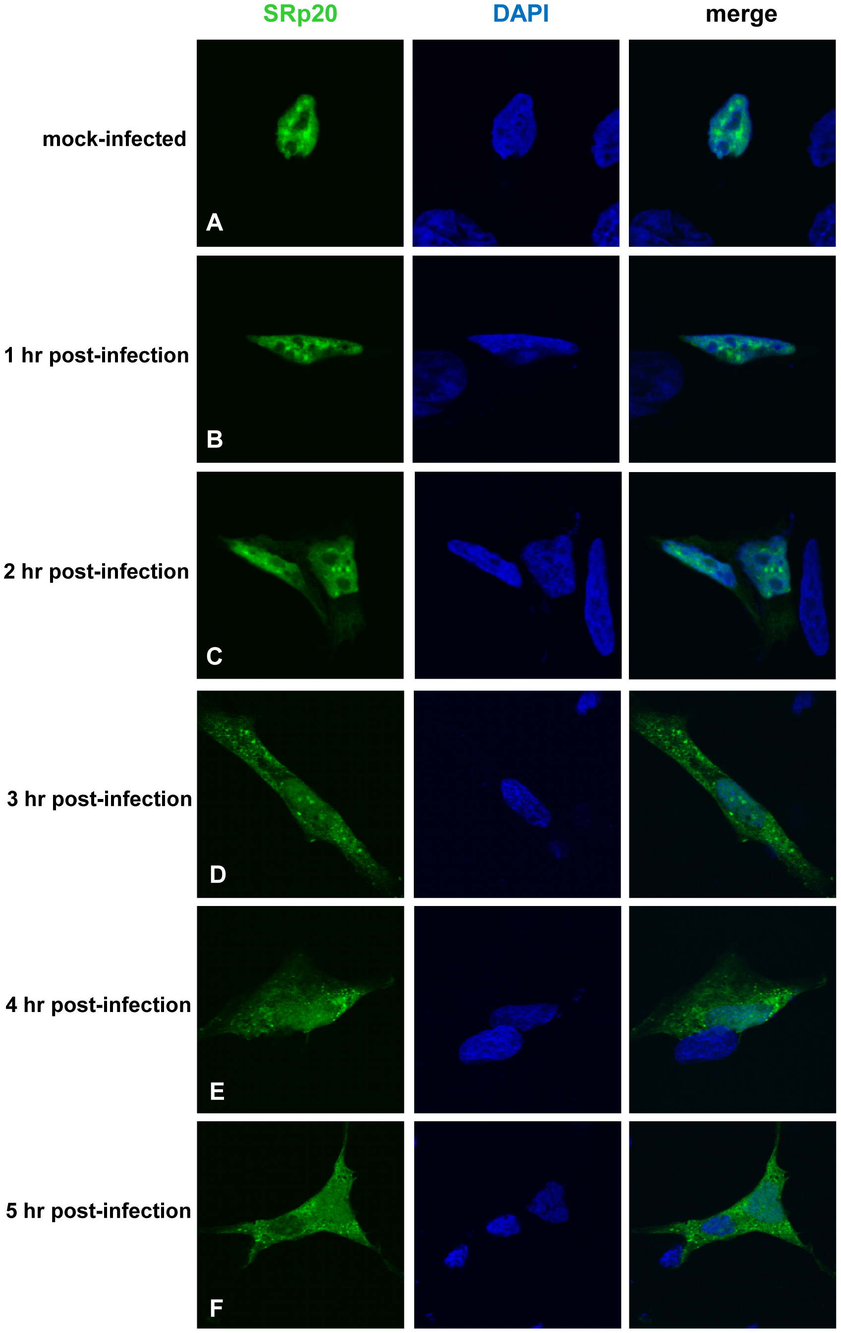 SRp20 re-localization from the nucleus to the cytoplasm of SK-N-SH cells during poliovirus infection.