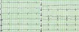 EKG nemocného s arytmogenní kardiomyopatií levé komory