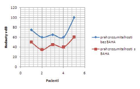Výsledky slovnej audiometrie v skupine získaných prevodových/kombinovaných porúch sluchu bez a s BAHA testerom – prah zrozumiteľnosti.
