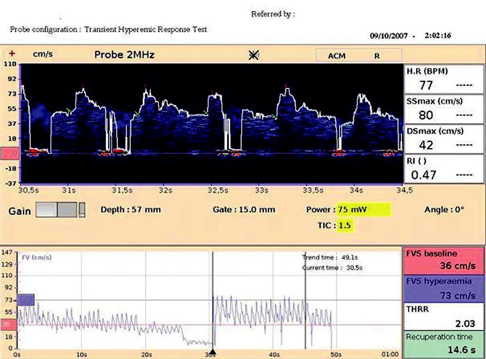 Hyperemický test V dolním okně záznam rychlosti průtoku krve na a. cerebri media l.dx. před kompresí a. carotis communis l.dx., následuje komprese a. carotis communis l.dx. po dobu 10 sekund s cha - rakteristickým poklesem rychlosti průtoku na a. cerebri media l.dx., po uvolnění komprese dochází ke kompenzatornímu zvýšení rychlosti průtoku krve.