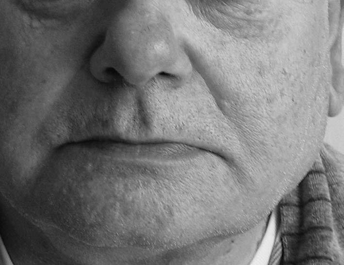 Asymetrie obličeje pomíněná zduřením v oblasti dolního pólu levé příušní žlázy
