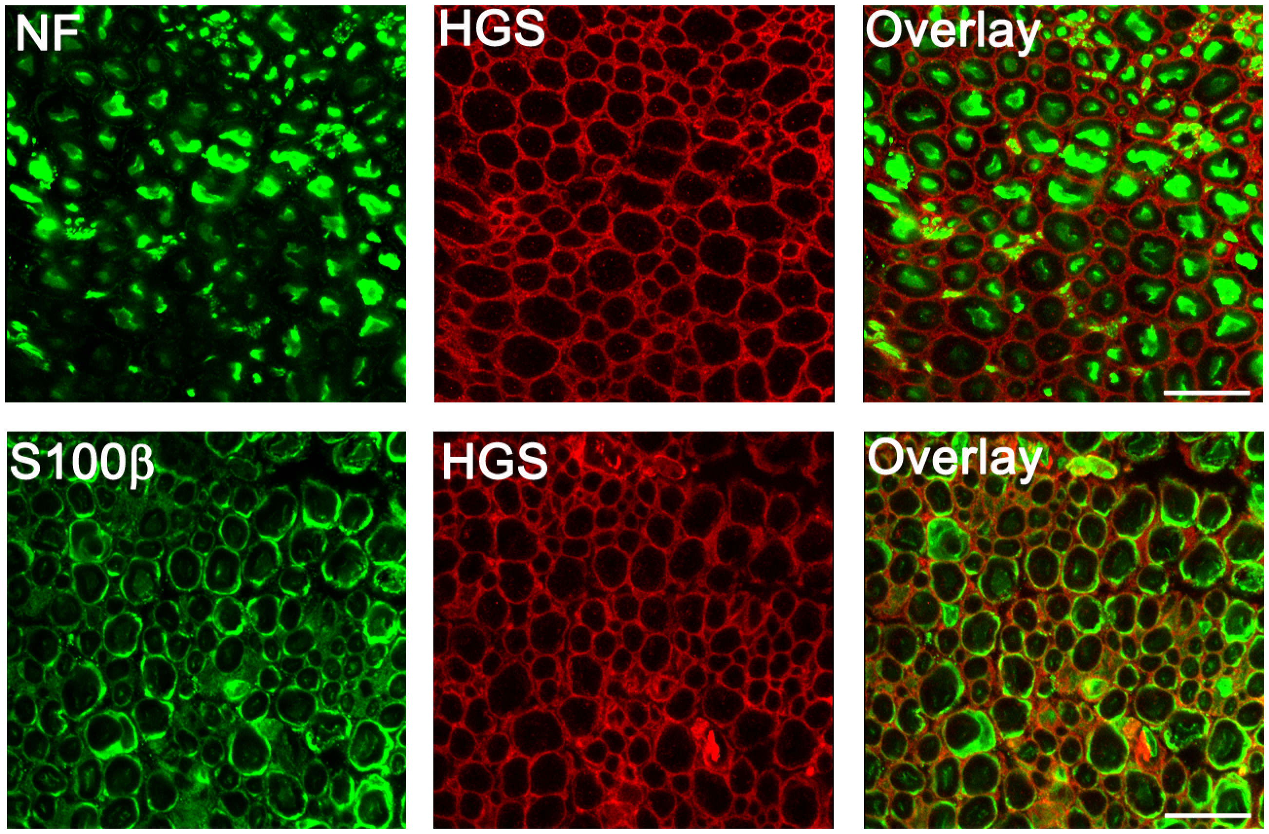 Distribution of HGS in sciatic nerves of 4-week-old <i>Hgs</i><sup><i>+/+</i></sup>mice.