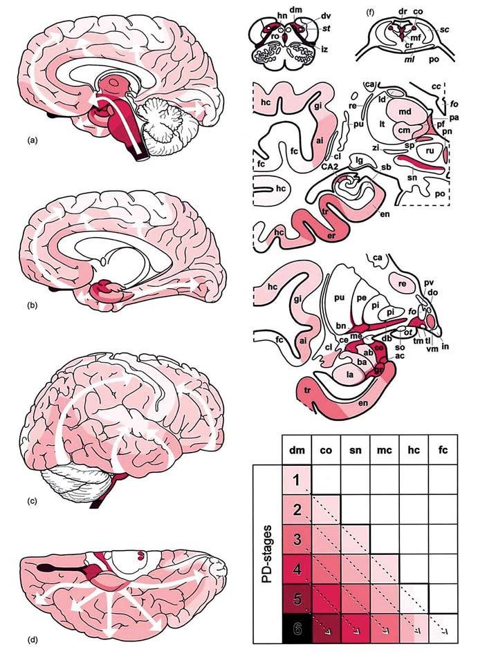 Progresia patologických zmien u PCh. Stupne intenzity červenej farby udávajú stupeň postihnutia mozgu typickou tzv. Lewy patológiou, šípky znázorňujú šírenie patologických zmien v čase a centrifugálny smer od mozgového kmeňa (a) do limbického a frontoorbitálného kortexu (b) a neskôr difúzne (c, d). dm – dorzálne motorické jadro n. vagus, co – locus coeruleus; sn – substantia nigra, mc – predný frontoorbitálny a temporálny mezokortex, hc – senzorický asociačný a prefrontálny kortex, fc – frontálny kortex vrátane primárneho senzomotorického kortexu, PD-stages – štádia PCh podľa Braaka (1–6) (prevzaté z [17]). Fig. 4. Progression of pathological changes in the PD. Intensity of the red color indicates the level at which the brain is affected with so-called typical Lewy pathology; the arrows show the spread of pathological changes over time and centrifugal direction from the brain stem (a) to the limbic and frontoorbital cortex (b), follow by diffuse spread (c, d).