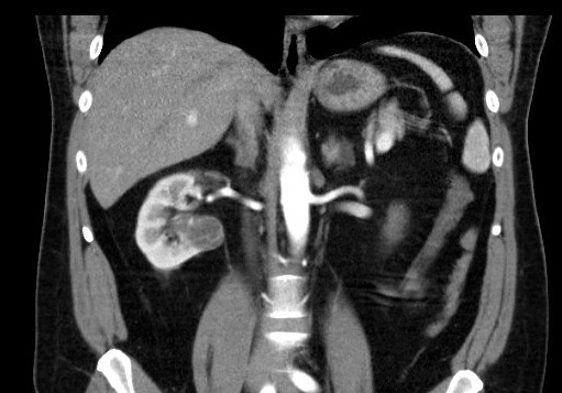 <i>CT zobrazení – Bosniak III</i> Fig. 6. <i>CT imaging – Bosniak III</i>