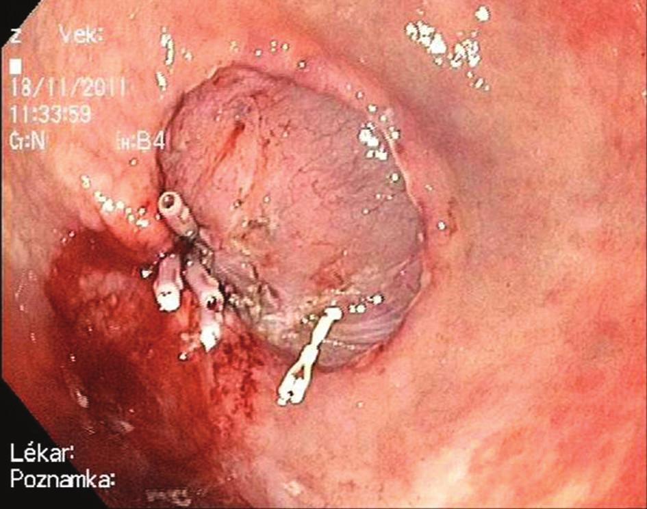 Endoskopická submukózní disekce: Krvácení ze spodiny ošetřeno klipy