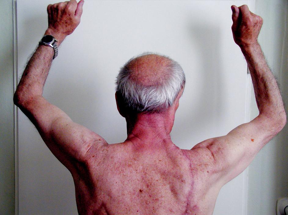 Kazuistika 2. Funkcia ramena po operácii v norme. Rana na chrbte zhojená primárne.