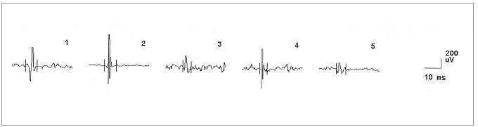 EMG nález při vyšetření musculus masseter vlevo u pacienta č. 4, dokumentující změny v obraze motorických jednotek neurogenního typu (vysoká amplituda MUP, polyfázie).