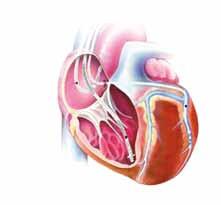 CRT systém se síňovou elektrodou, defibrilační a stimulační elektrodou v pravé komoře a stimulační elektrodou v laterální větvi koronárního sinu pro stimulaci levé srdeční komory.